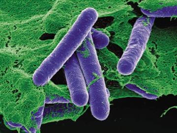 Clostridium_Botulinum cropped