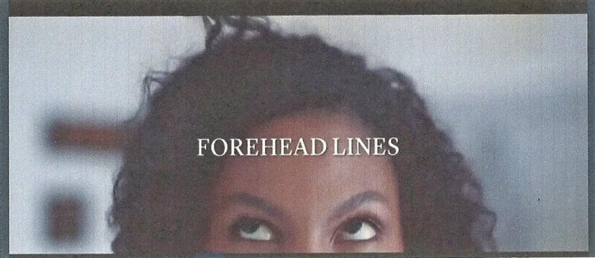 Forehead lines (2).jpg