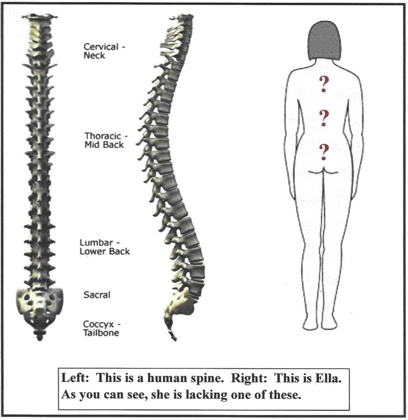 Spine_01 (2)